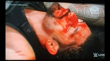 ​WWE: ¿Roman Reigns utilizando sangre falsa ante Triple H? [VIDEO]