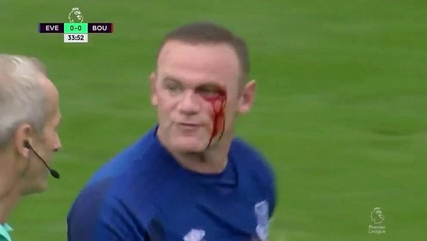 Wayne Rooney: el terrible codazo que puso en peligro su ojo [VIDEO]